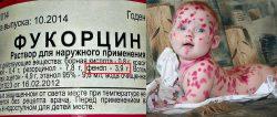 фукорцин фенол опасность ветрянка у детей